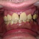 Αισθητική αποκατάσταση δοντιών της άνω γνάθου