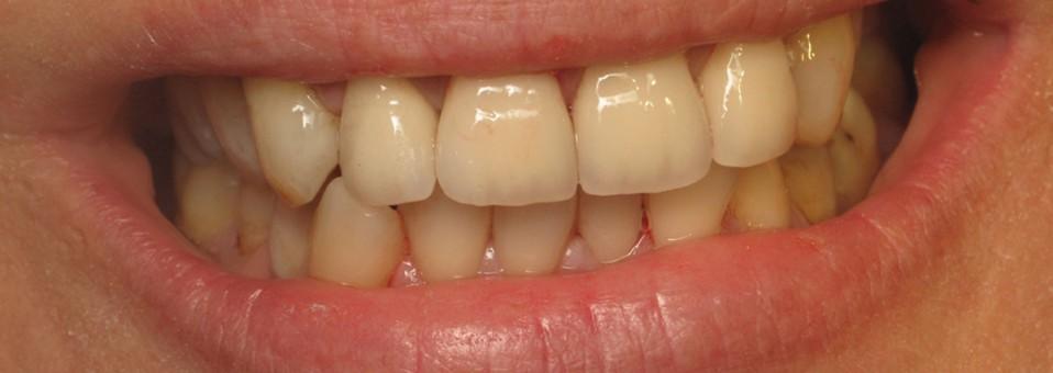 Αποκατάσταση προσθίων δοντιών με ολοκεραμικές στεφάνες