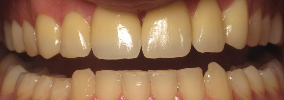 Ολοκεραμικές e.max αποκαταστάσεις στα 6 πρόσθια άνω δόντια